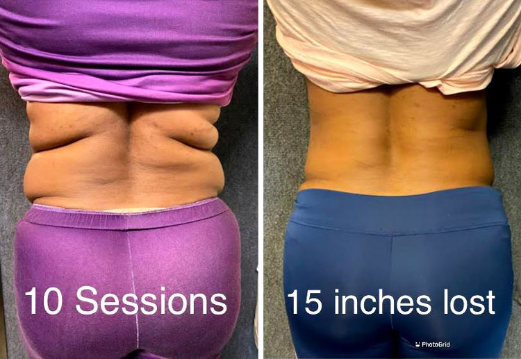 Weight Loss Jacksonville FL iLipo Before And After